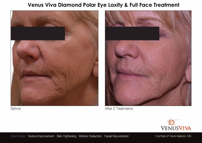 Venus-Viva-Diamond-Polar-Full-Face-Eye-LaxityTreatment-Facial-Rejuvenation-Textural-Improvement-Skin-Tightening-Nulookbeauty-Markham