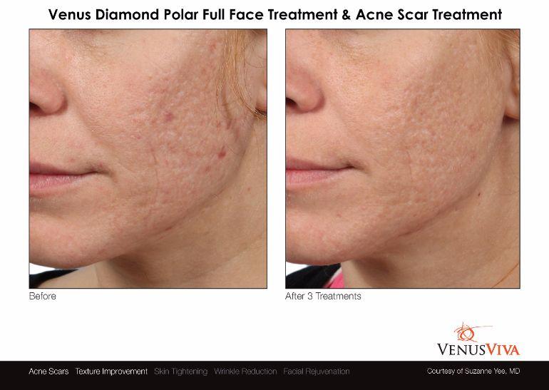 Venus-Viva-Diamond-Polar-Full-Face-Treatment-AcneScars-Facial-Rejuvenation-Textural-Improvement-Skin-Tightening