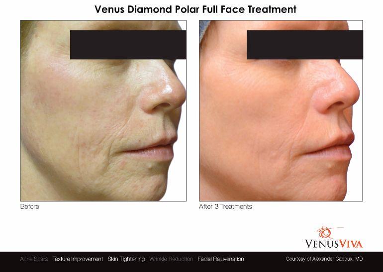 Venus-Viva-Diamond-Polar-Full-Face-Treatment-Facial-Rejuvenation-Textural-Improvement-Skin-Tightening