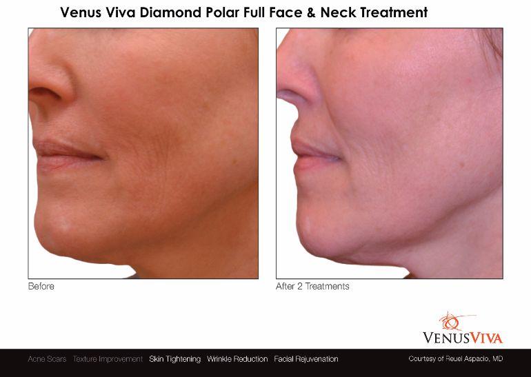 Venus-legacy-Neck-Full-Face-Treatment-Nulookbeauty-Markham-Skin-TighteningCellulite-Reduction