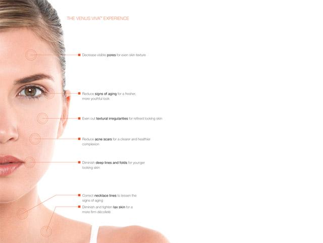 Venus Viva Skin Resurfacing Treatments